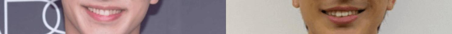 横浜流星と橋岡優輝の口元比較